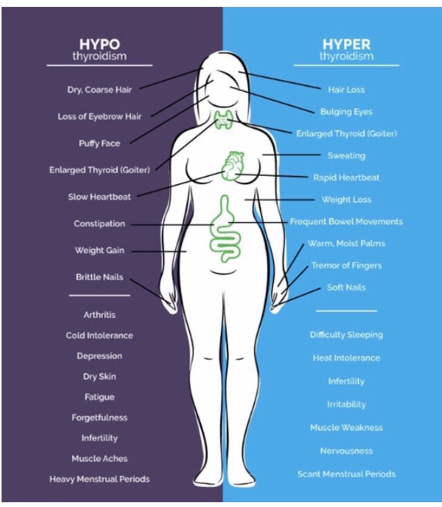 Hypothyroidism and Hyperthyroidism